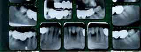 I underkäken har patienten en entandslucka, 31. 41 och 31 är bräckliga ändstöd på grund av parodontal nedbrytning. En bro från 42 till 33 kan vara ersättningsberättigande.