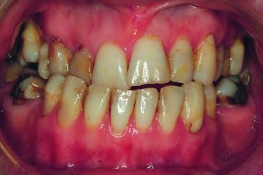 Tandvårdsstödet