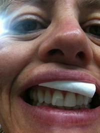 laga tänder själv