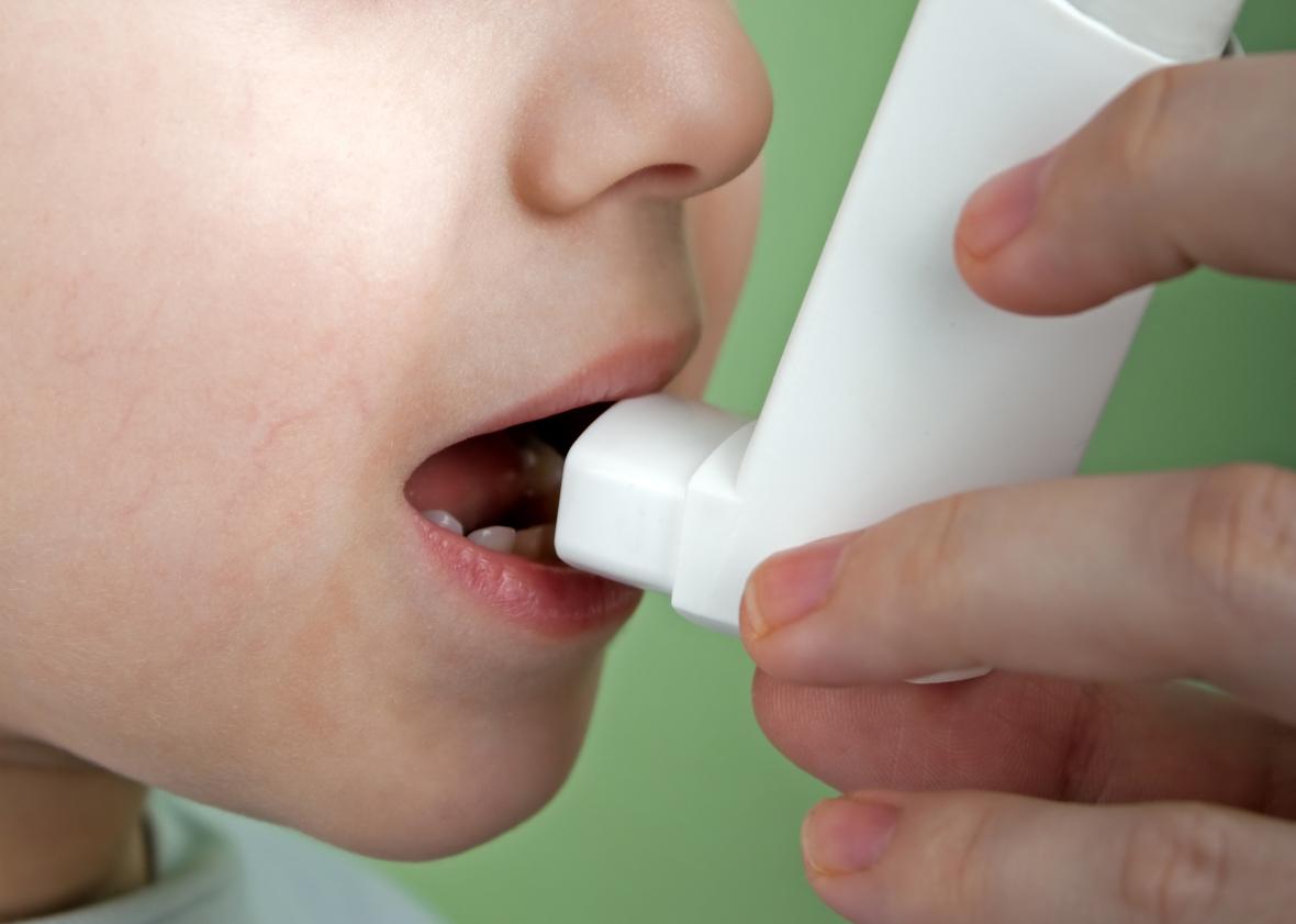 Nytt stöd för astmamediciners ökade risk att ge barn karies