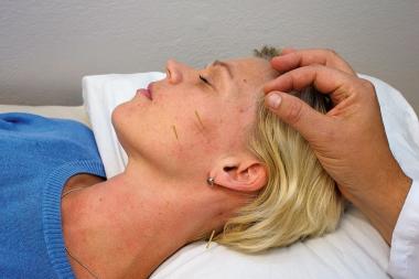 Akupunktur lindrar smärta