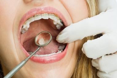 Tandläkare ett säkert yrkesval