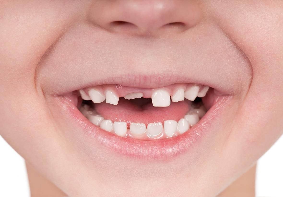Tandhälsan i Sverige är god, men kan bli bättre