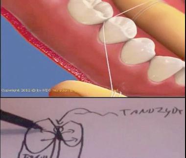 Lättare att förstå parodontit med 3D-animation
