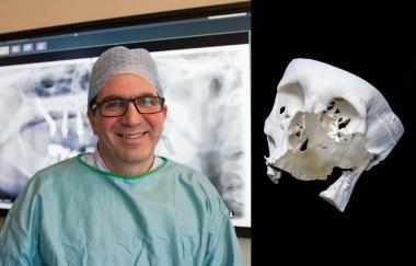 3D-pionjären printade ut ett halvt ansikte