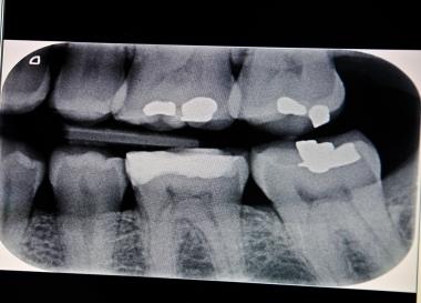 Tandläkarstudenter lär sig för lite om strålskydd