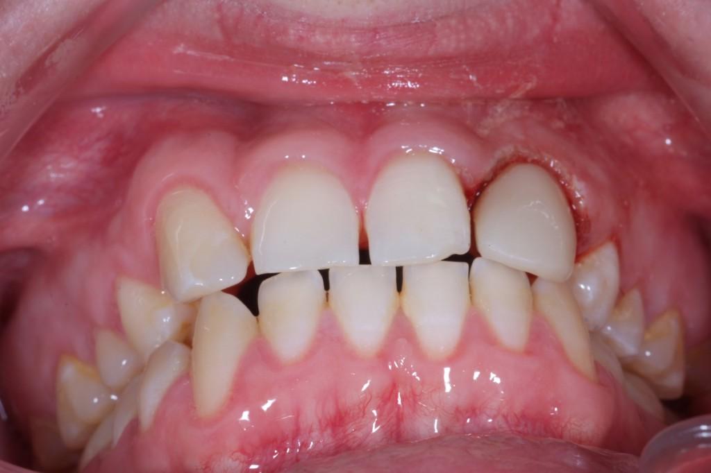 Så här snygg blev tanden efter att mamma hade format till den med hjälp av farfars gamla plasttänder.