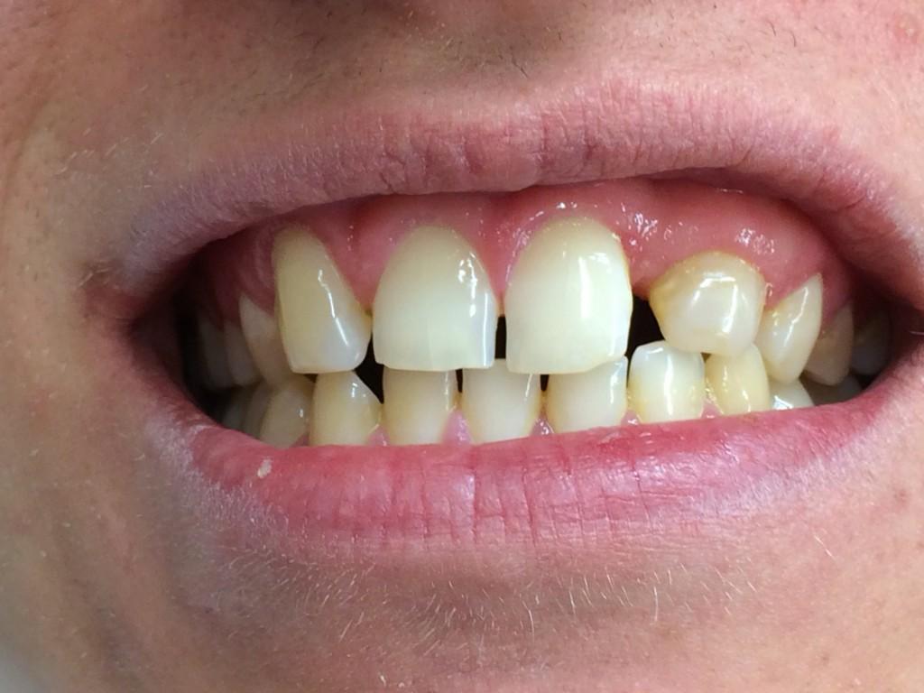 Så här såg Erik ut innan mamma fixade till den transplanterade tanden.