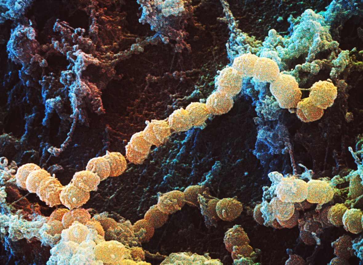 Kariesbakterie sprids från mamma till barn