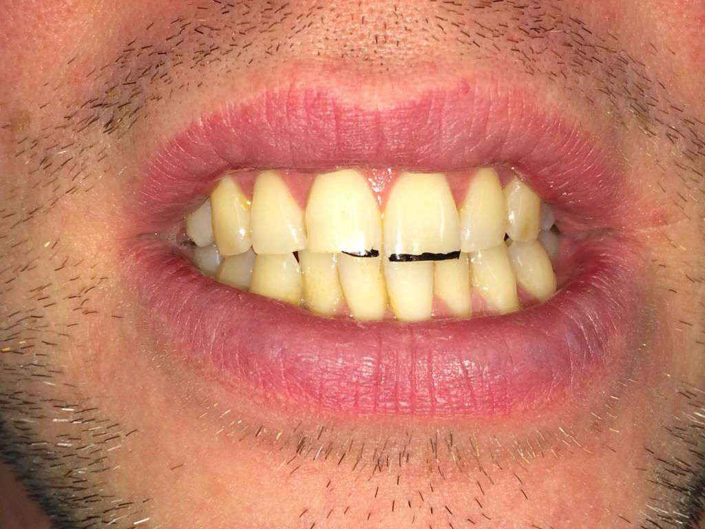Här har jag tecknat med en svart permanent tusch på tanden för att illustrera hur det kommer att se ut om man slipar på incisalkanten.