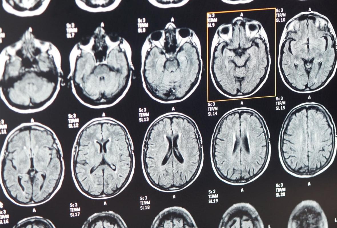Tandvärkens plats i hjärnan funnen