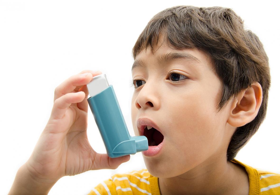 Bruxism vanligare hos barn med astma