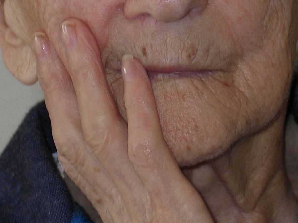 Tandläkarförbundet: Äldre får hjälp för sent