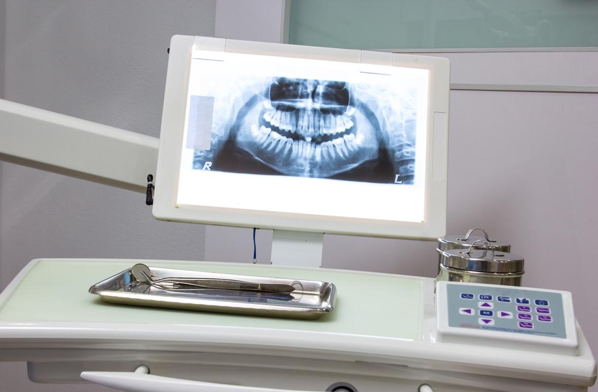 SSM vill strama åt ersättning för röntgen