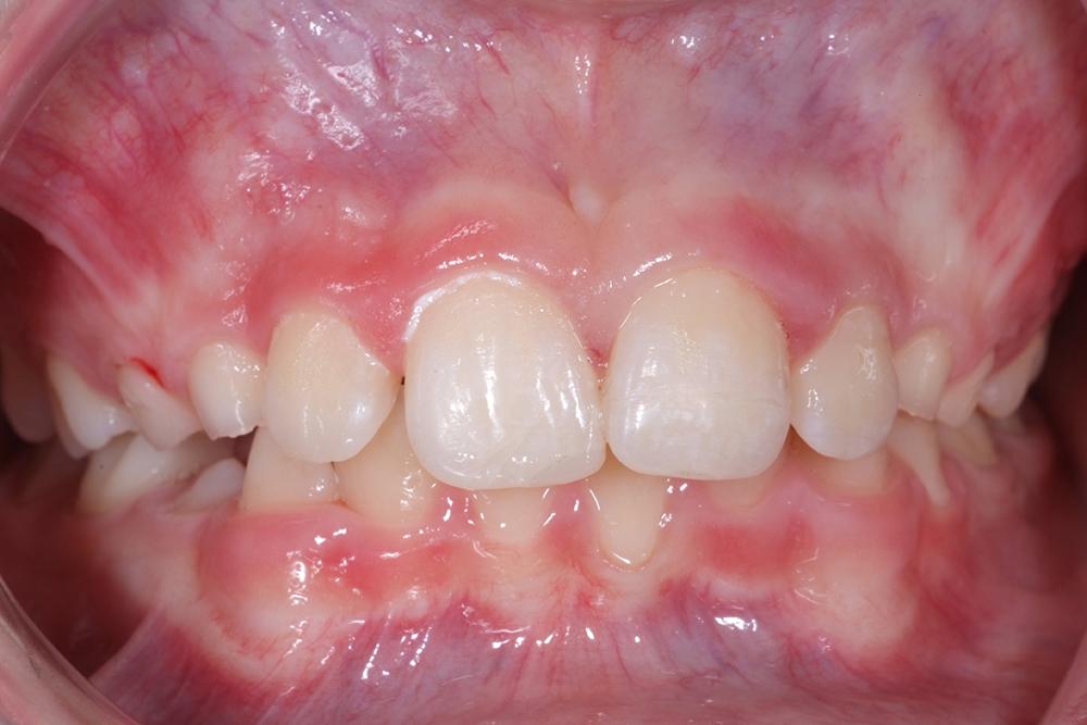 Efter laserunderstöd och recementering av tandfragmentet så var Emil så gott som ny igen.