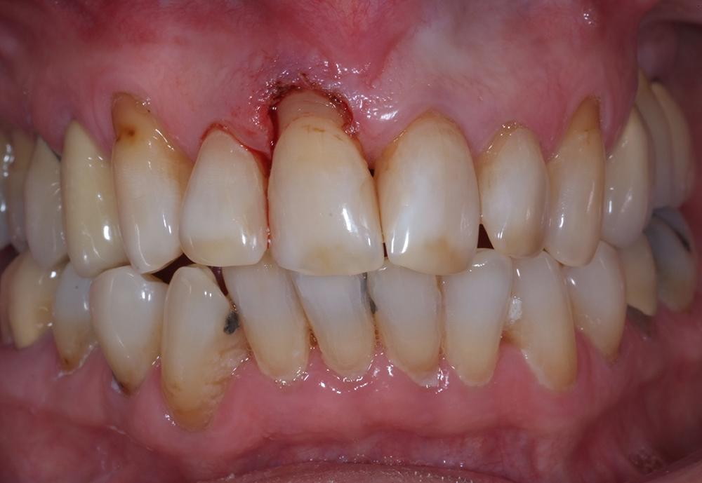 Jag gingivectomerade med hjälp av laserunderstöd och laserbehandlade både den lösa tandbiten och tanden i munnen innan jag recementerade tandfragmentet.