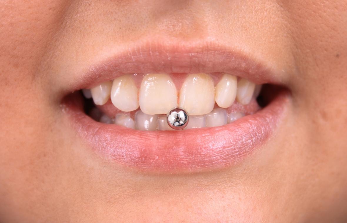Tuggummi och piercing bakom ungas käkproblem