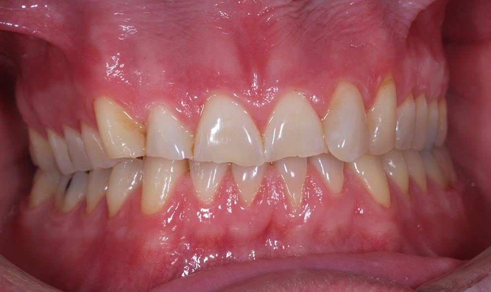 Jakob har slitit ner bettet kraftigt genom att gnissla tänder och bita på naglarna.
