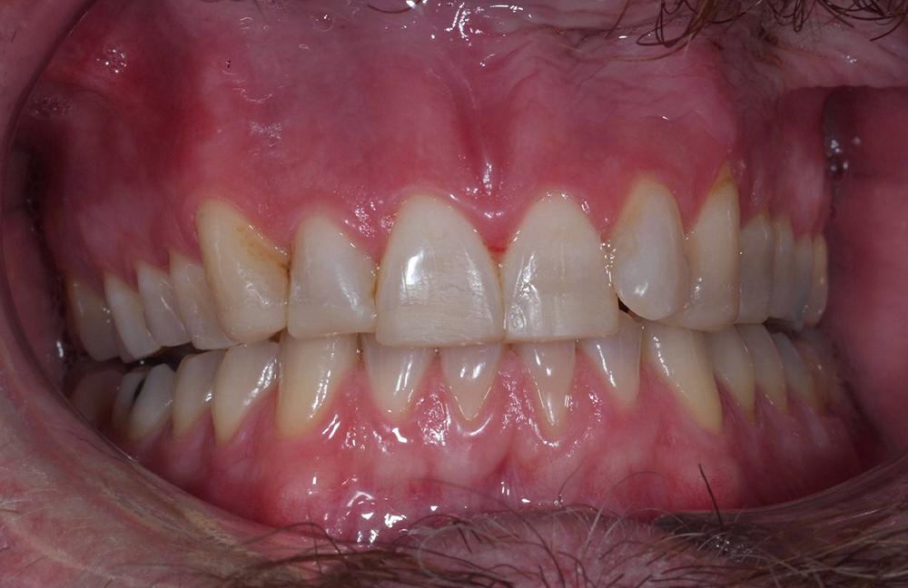 I stället för lösnaglar bestämde vi oss för att höja Jakobs bett med hjälp av komposit från 14 till 24. När jag höjer bett går jag över tänderna med laserunderstöd för att skapa en större yta att fästa lagningen till. Övergången mellan tand och lagning suddas nästan bort.