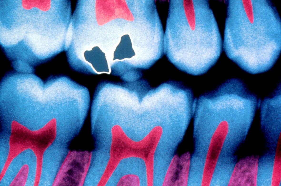 Lägre halter kvicksilver hos barn efter amalgamstoppet