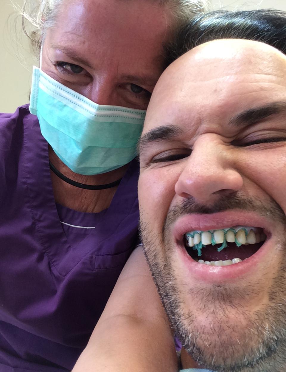 Lösningen blev att slipa ner tänderna från 14 till 23 och höja bettet med hjälp av kronor i överkäken. Runt 21 gjorde jag en gingivectomi med laserunderstöd för att det skulle bli en snygg och jämn gingivallinje.