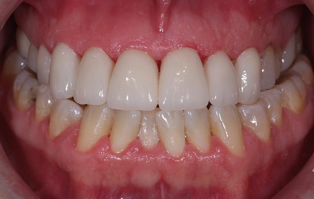 Mina fantastiskt duktiga tandtekniker Marita och Ola på Anders Gustafssons Tandteknik i Katrineholm klarade konsten att tillverka nya, vackra tänder som passade perfekt!