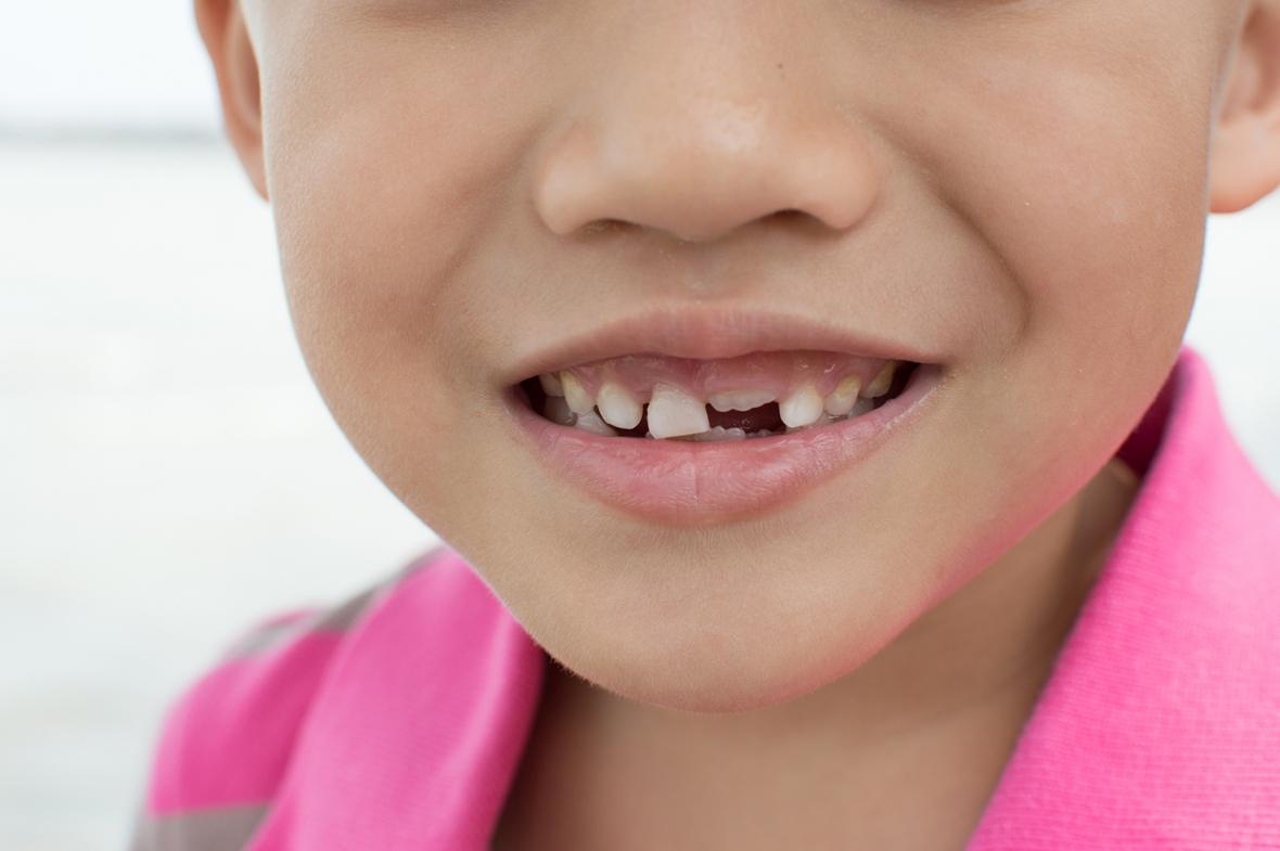 Barns tandhälsa förs in i tandhälsoregistret