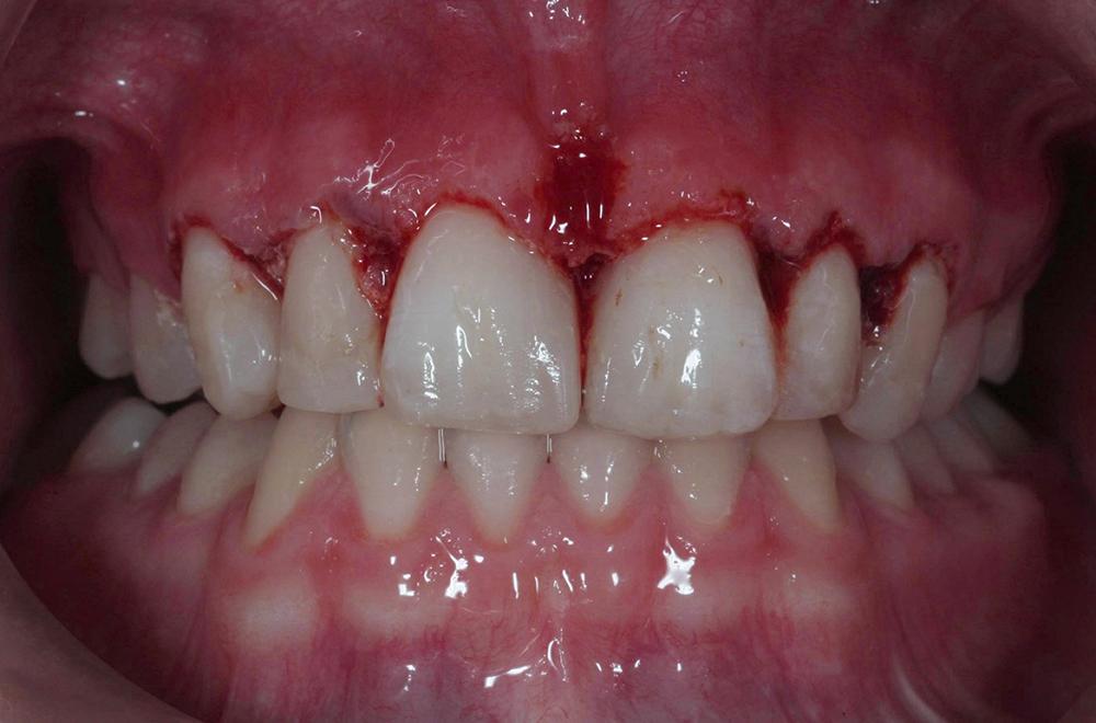Så här såg det ut då hon var klar. Bettet är höjt och hon lämnar kliniken med ett sårigt tandkött och ingen kontakt i molarområdet. Det blev en del slipande och putsande för att få ett snyggt resultat men vi blev båda glatt överraskade över att alla luckorna gick att försluta.