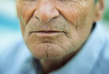 Biståndsbedömare missar ofta äldres munhälsa