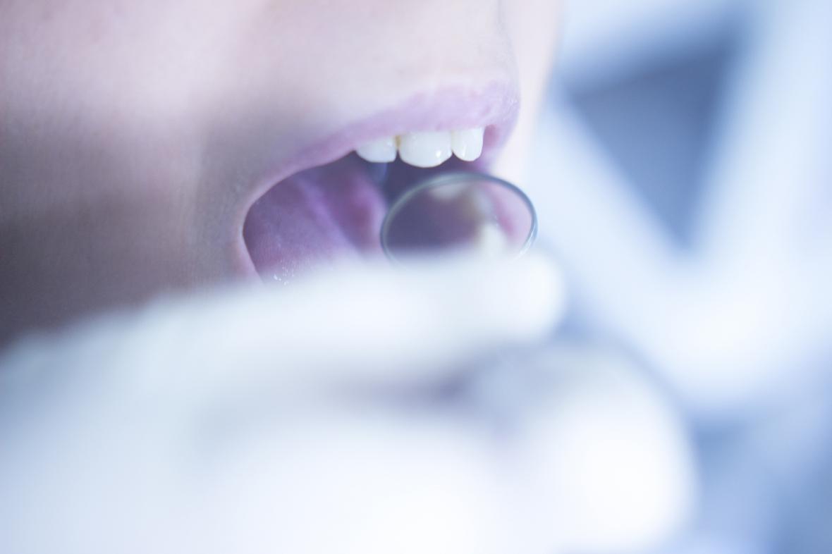 Flyktingbarn har särskilda tandvårdsbehov