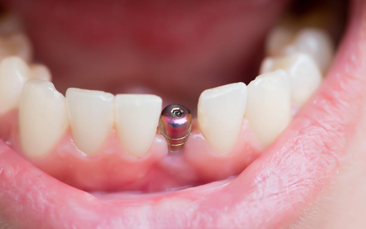 Fyrdubblad risk att ett ersatt implantat fallerar