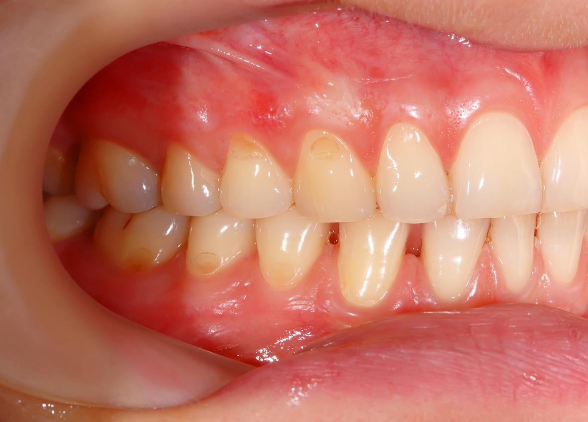 Kvinnor kan ha genetiskt starkare tänder än män