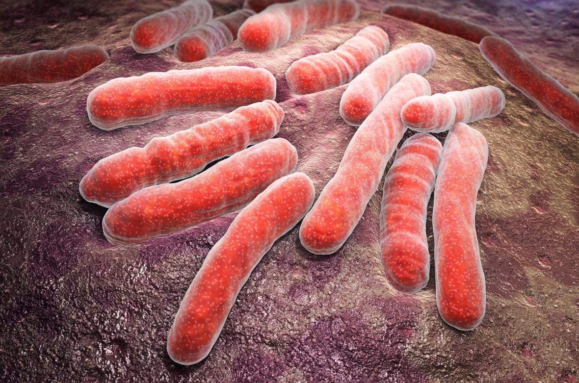 Liten risk att bli smittad av tuberkulos i tandvården