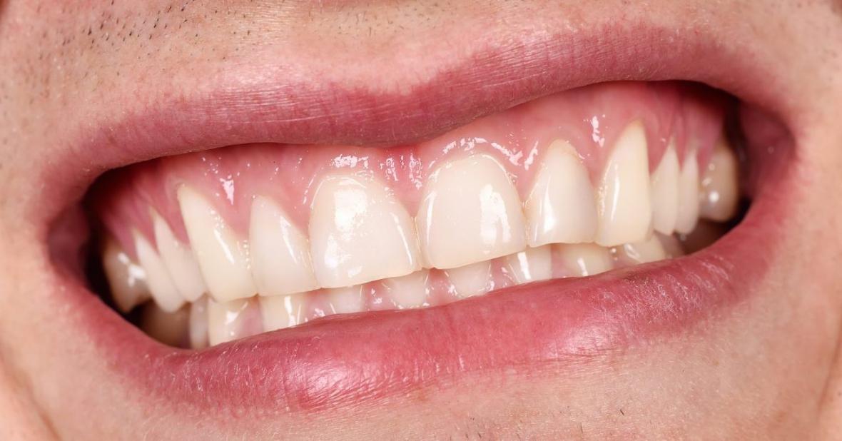 Tandköttet får egen dag