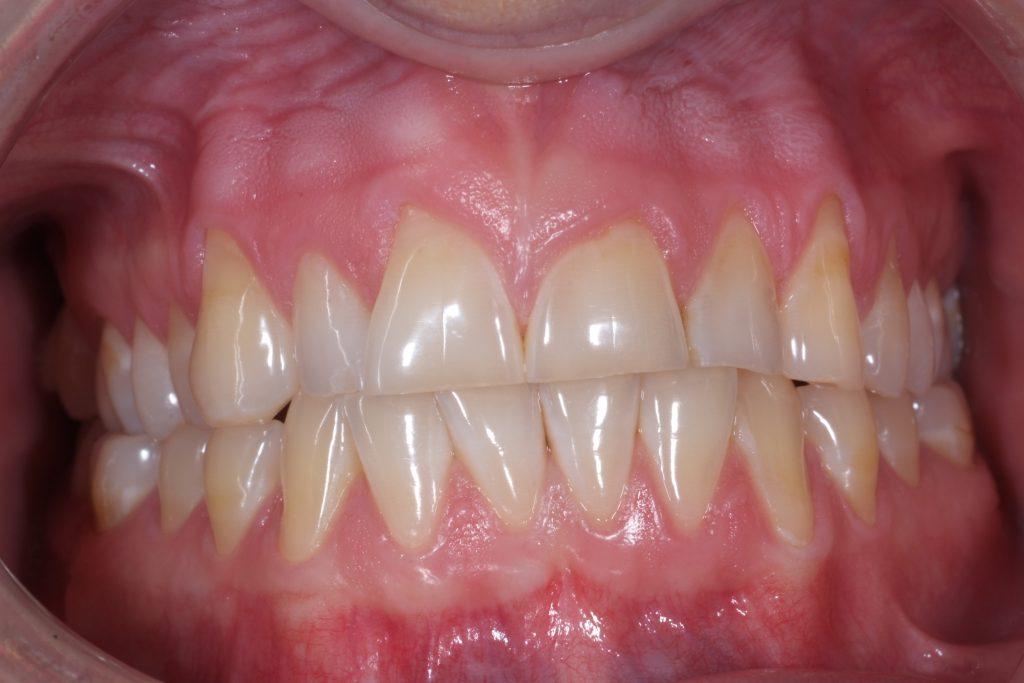 lagad tand ilar