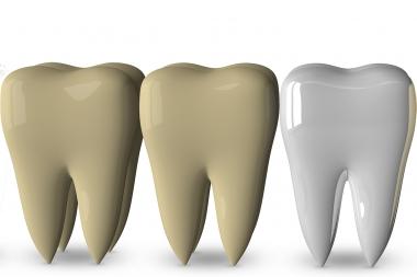 Många brister hos tandblekningsmedel
