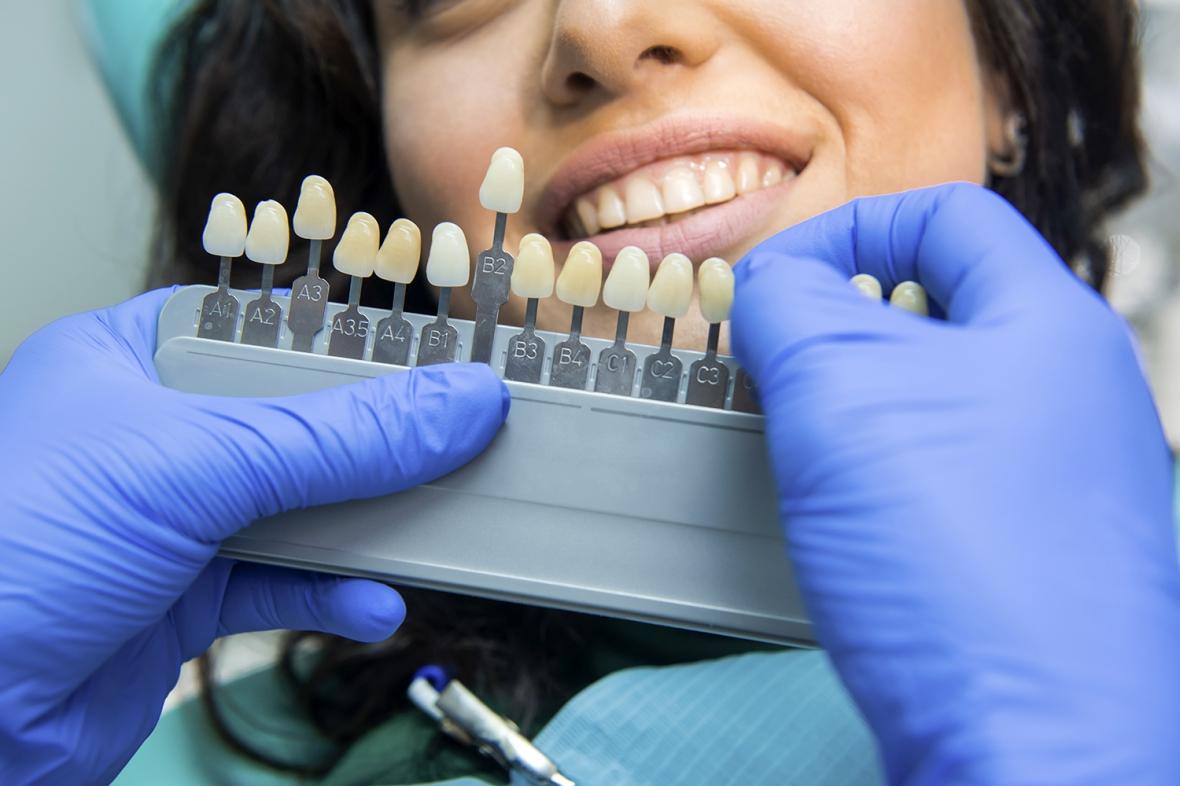 tandblekning med väteperoxid