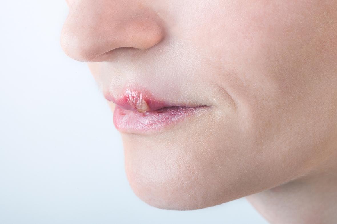 Herpes kan öka risken för aggressiv parodontit