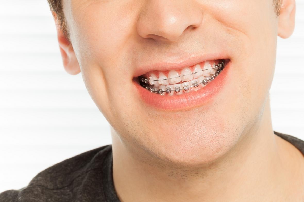 Ortodontibehovet bedöms olika i landet