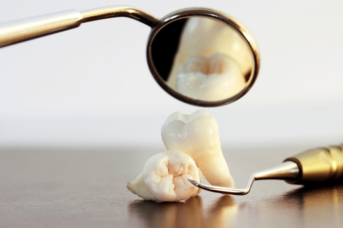 Parodontit minskar i Sverige