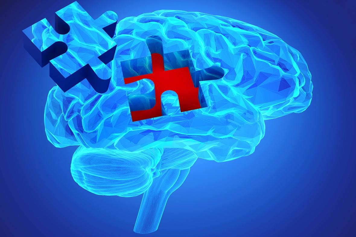 Parodontit trolig riskfaktor för demens