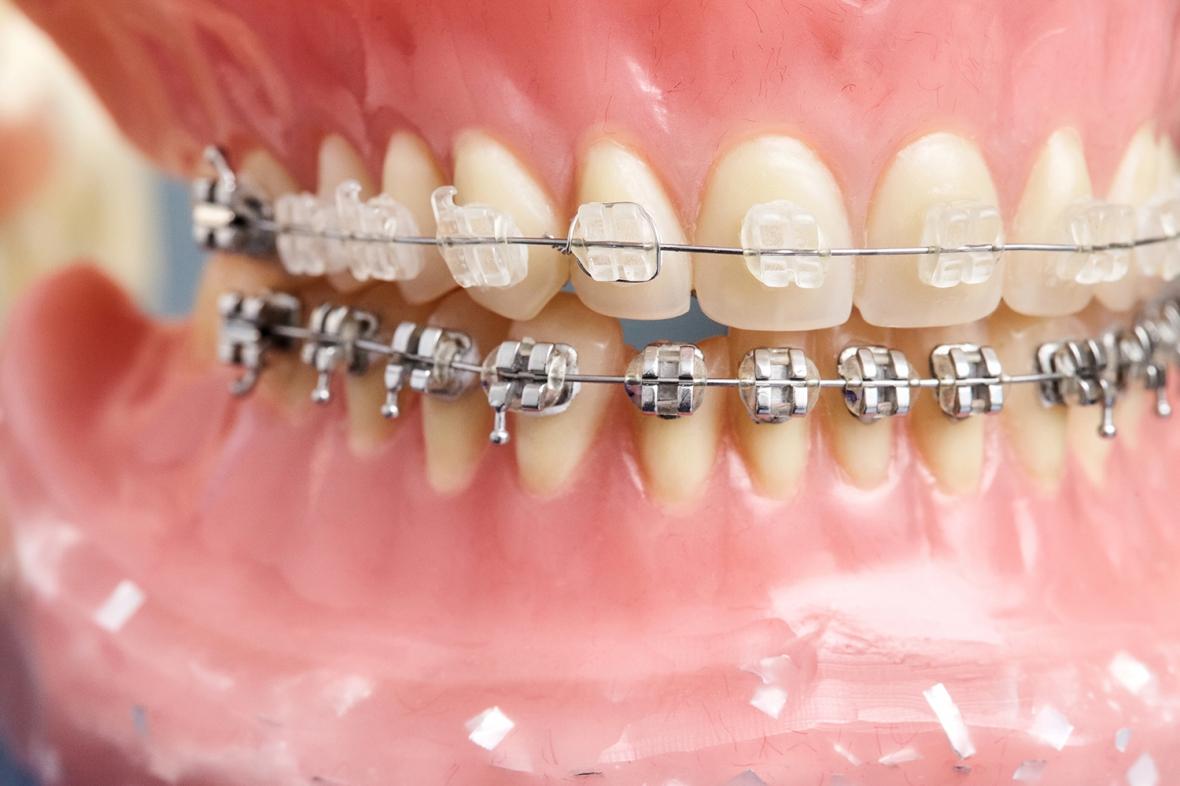 Ortodonti i Norge kortar Värmlands köer