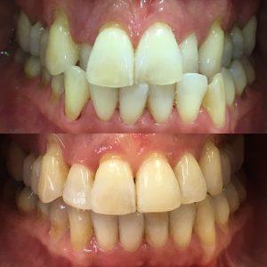 Blåsor under tungan