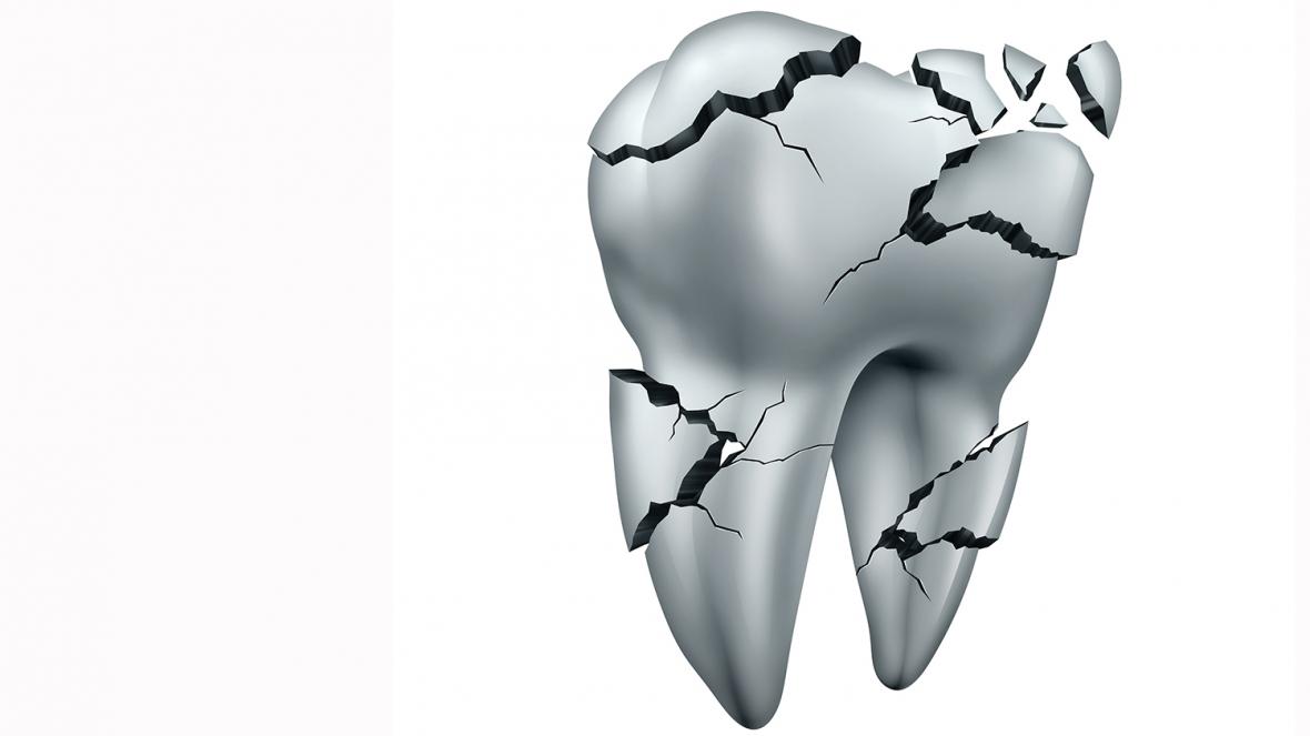 Sju av tio tänder med sprickor kan räddas