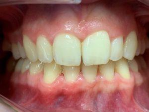 avtagbara ortodontiska skenor