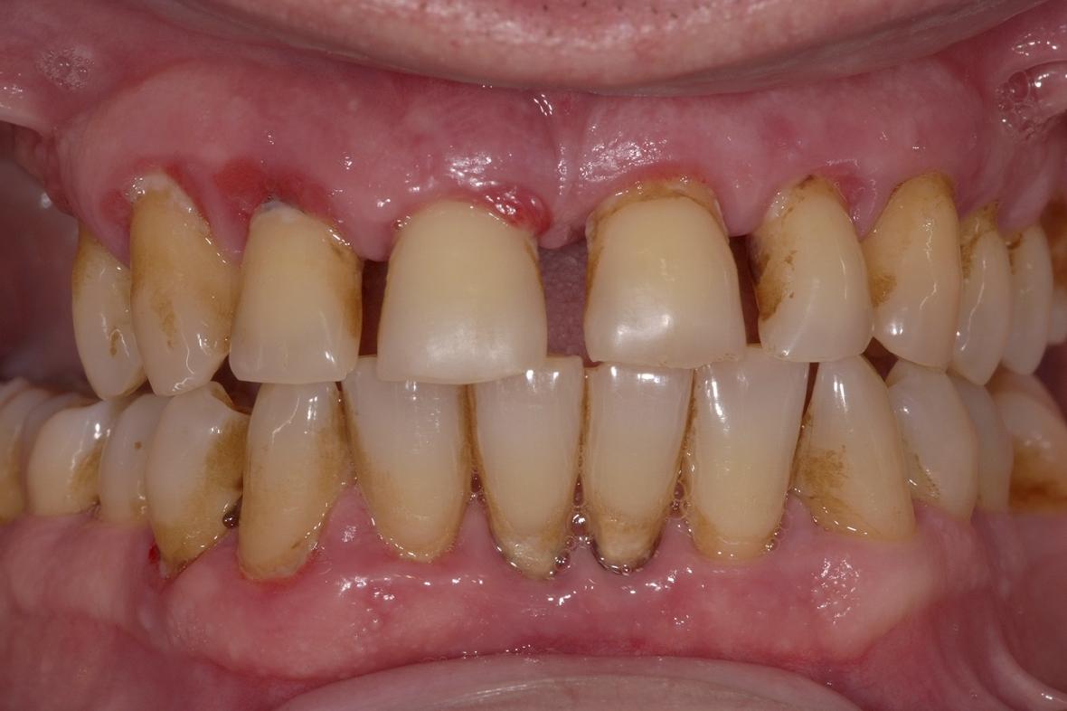 Ny klassificering för parodontit på plats