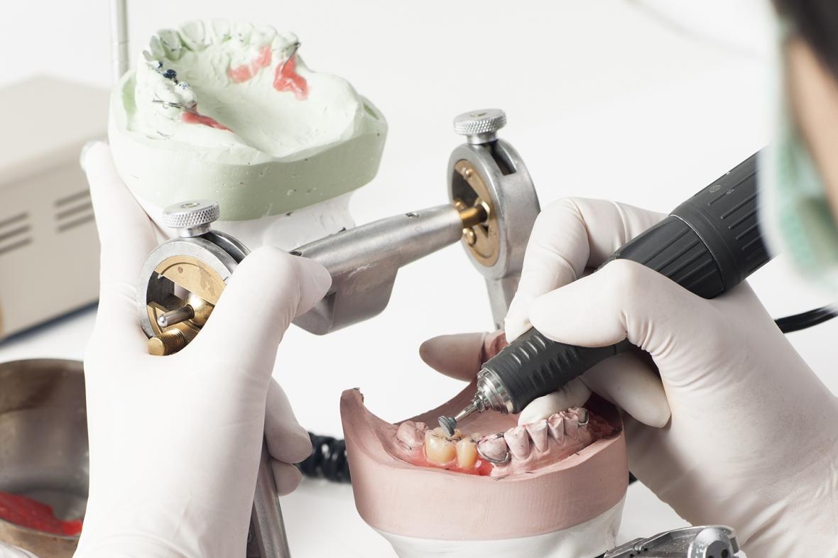 Så drabbar coronakrisen labben och dentalhandeln