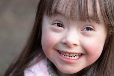 Barn med Downs syndrom har lägre förekomst av karies