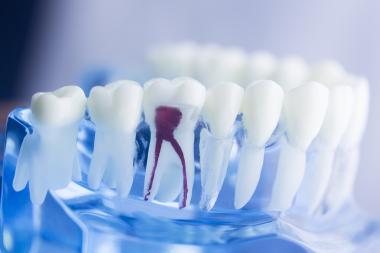 Två av hundra rotfyllda tänder förloras varje år