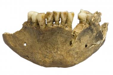 Ledtrådar i tandsten